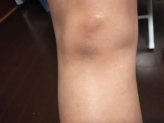 膝の黒ずみ部分