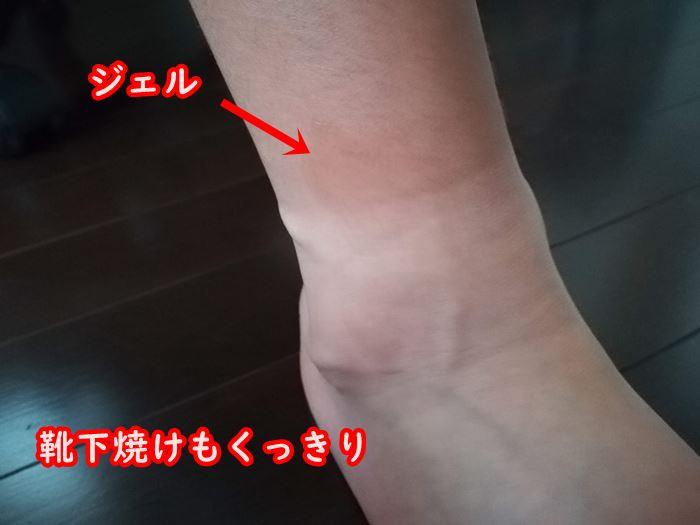 靴下による日焼け痕の写真